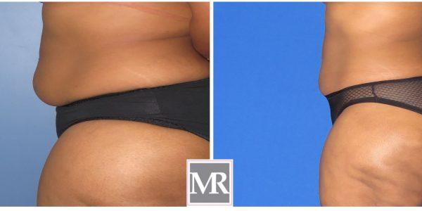 Liposuction Abdomen Beverly HIlls