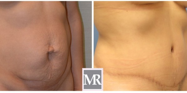 Tummy Tuck Beverly Hills