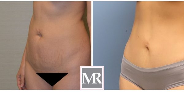 Mini-Abdominoplasty Beverly Hills