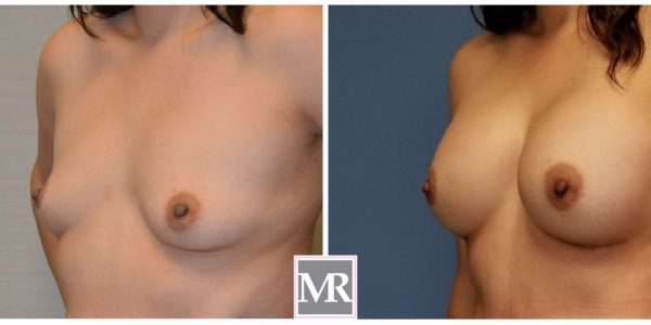 Breast Implants Beverly Hills