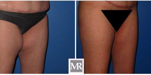 Patient 3 - Thigh Liposuction Oblique View
